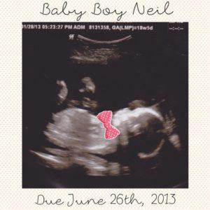 Everett's Ultrasound Picture